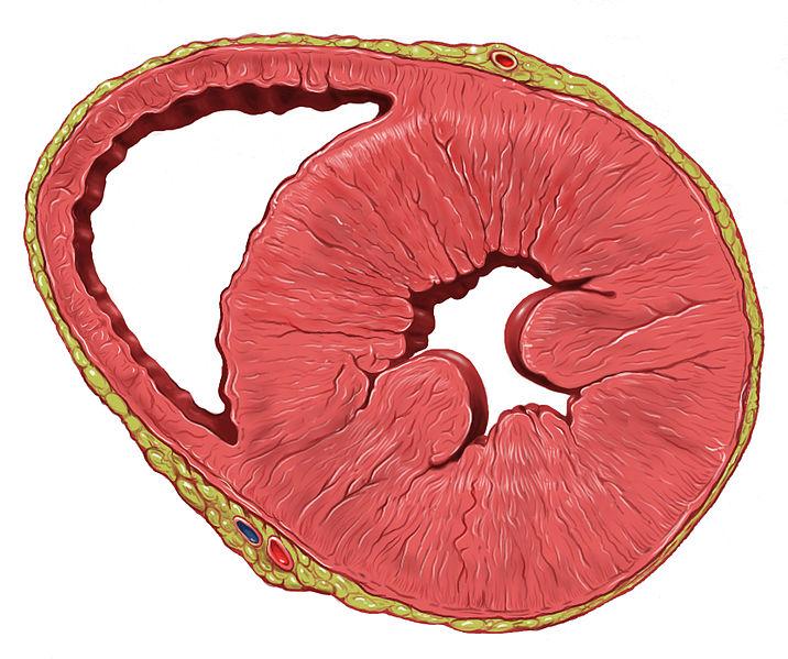 Heart left ventricular hypertrophy