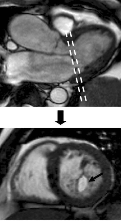 Heart valve disease mitral stenosis