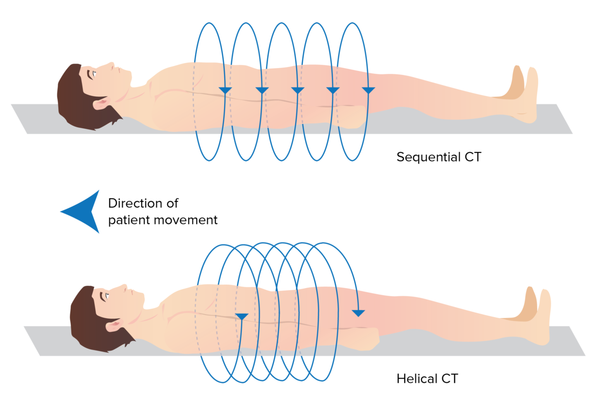 Helical vs sequential CT