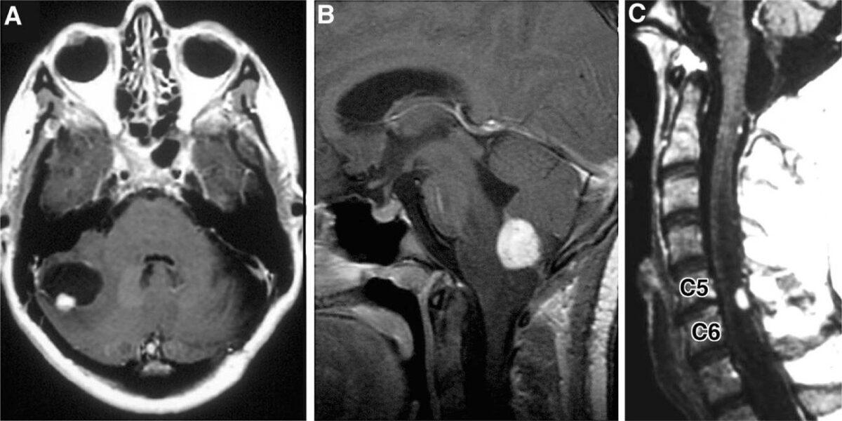 Hemangioblastoma