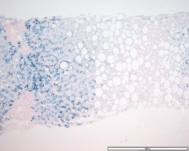 Hemochromatosis acini