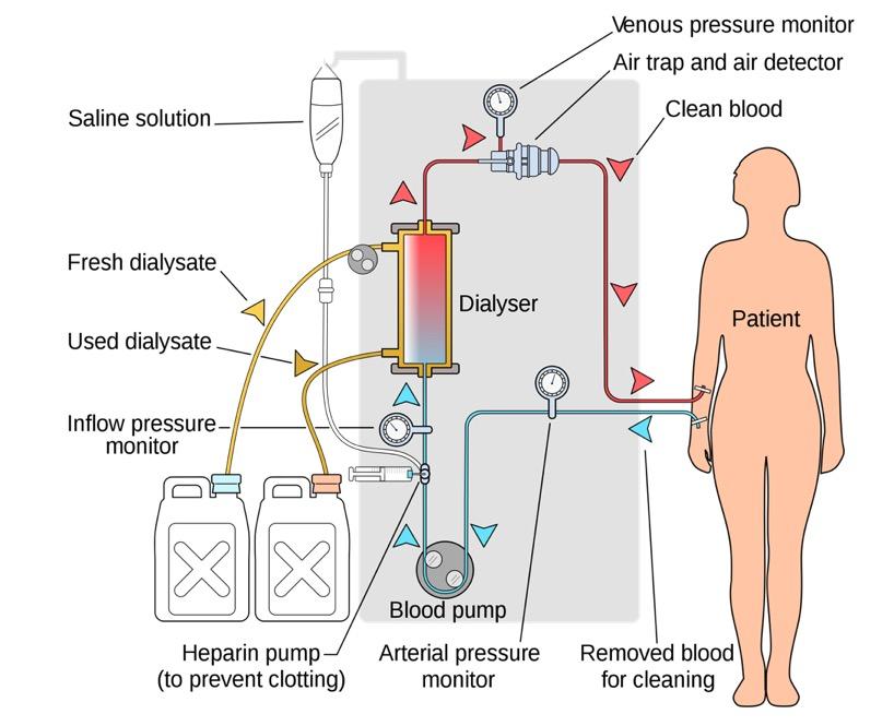 Hemodialysis setup