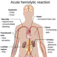 Hemolytic reaction symptoms