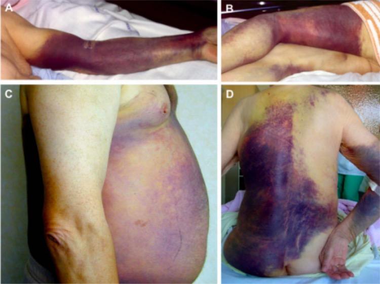 Hemophilia subcutaneous ecchymoses