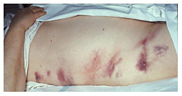Hemorrhagic pancreatitis