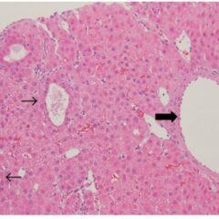 Hepatic adenoma