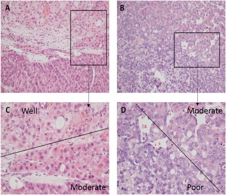 Hepatocellular carcinoma tumor grading