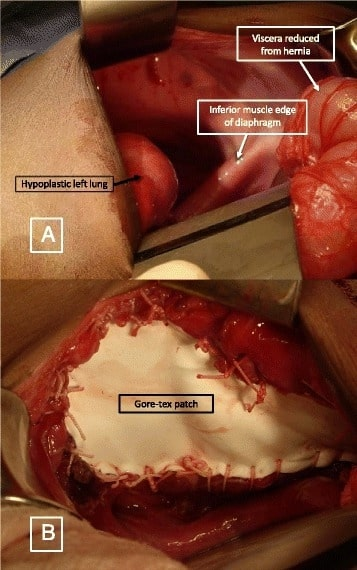 Hernia repair with prosthetic patch