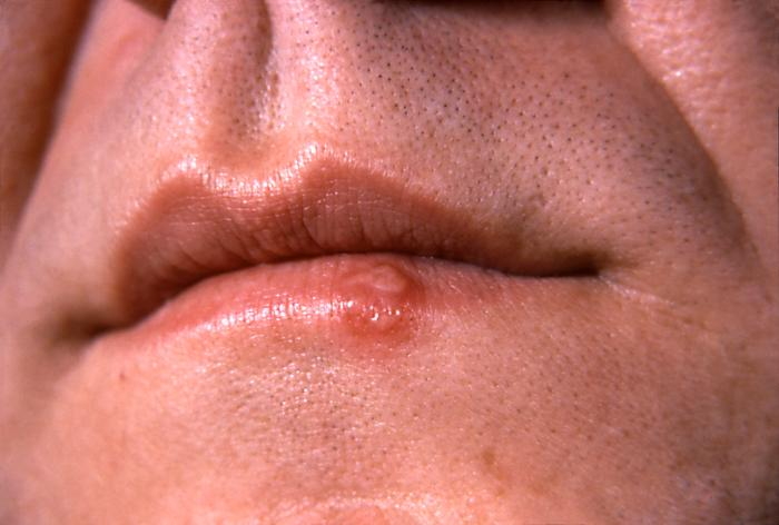 Herpes simplex lesion on the lower lip