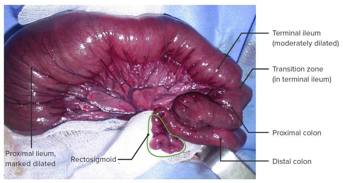 Hirschsprung Disease โรคลำไส้โป่งพองแต่กำเนิด