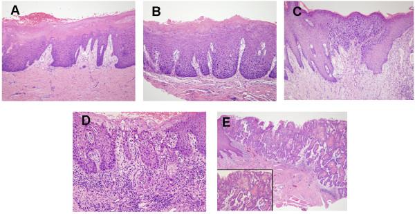 Histologic images of oral leukoplakia