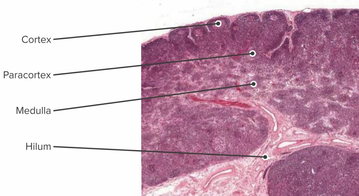 Histologic section of the lymph node showing the cortex, paracortex and the medulla