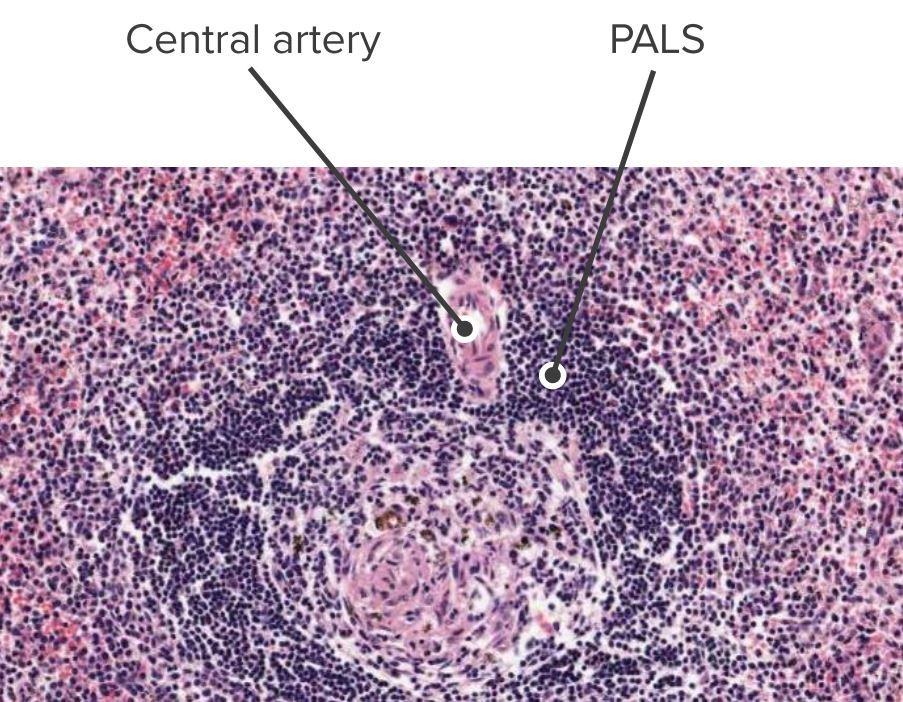 Histologic section of the spleen