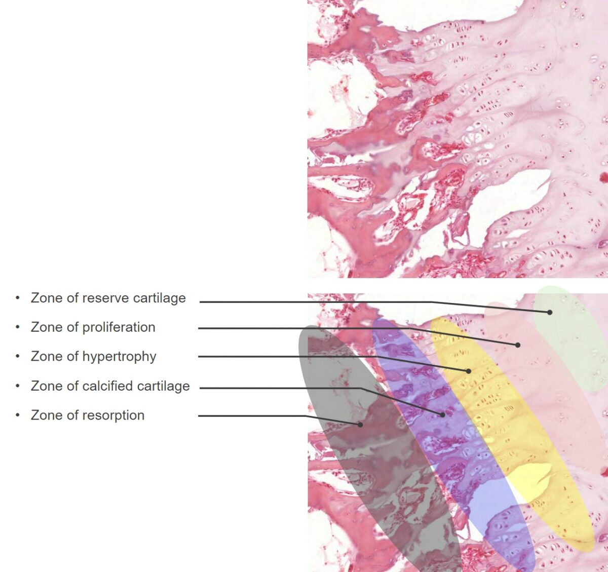 Histologic zones of the epiphyseal plates