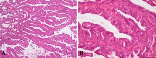 Histological appearance of IDP