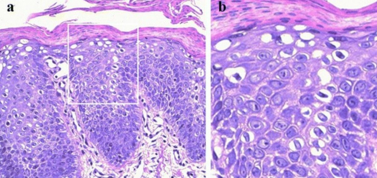 Histological findings in ichthyosis