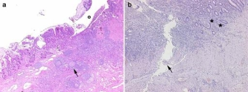 Histological images crohns disease