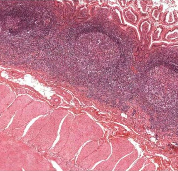 Histologic section of the ileum showing Peyer's patches