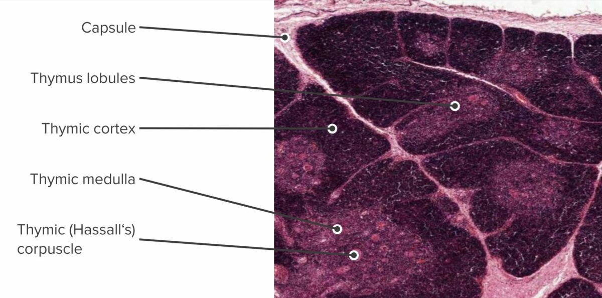 Histologic section showing the structure of a thymus