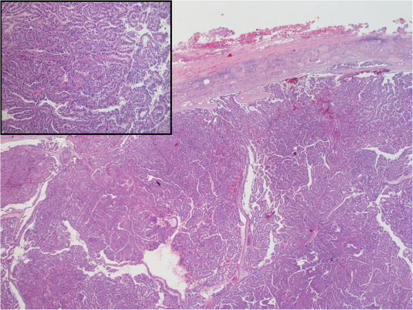 Histology of papillary renal cell carcinoma