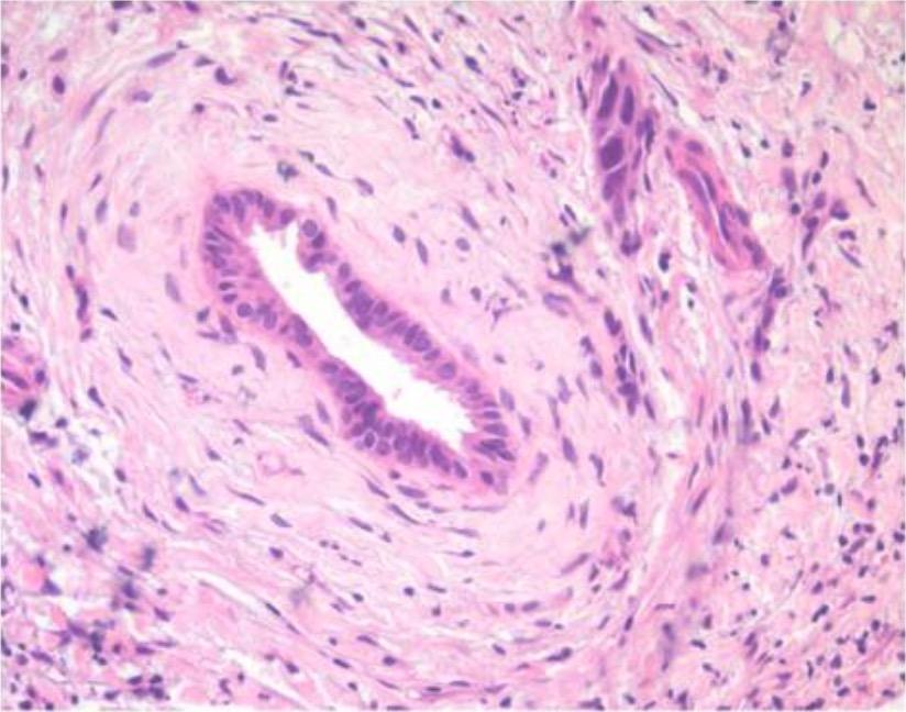 Histology of primary sclerosing cholangitis