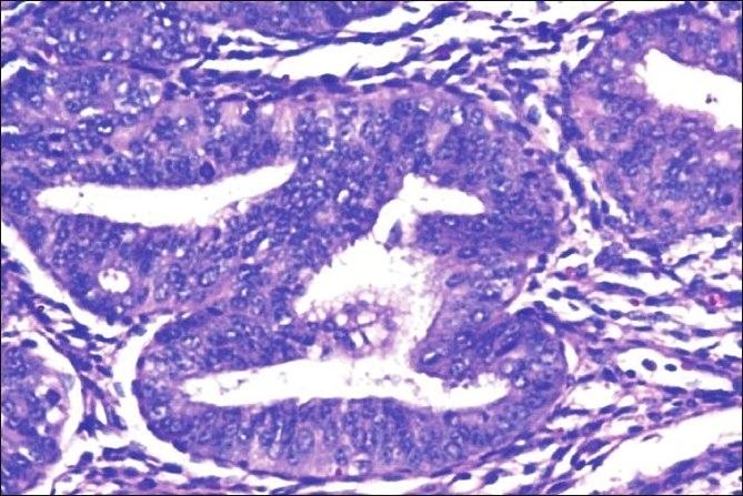 Histopathology of complex hyperplasia