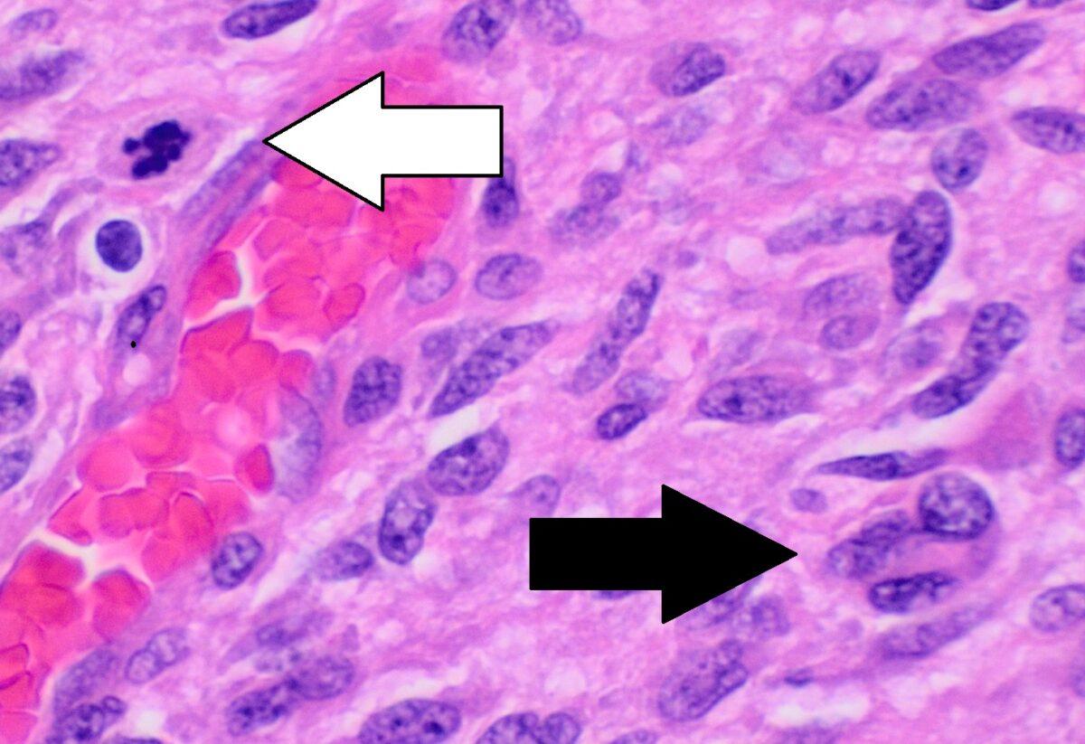 Histopathology of glioblastoma showing nuclear pleomorphism