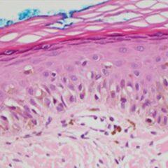 Histopathology of lentigo maligna
