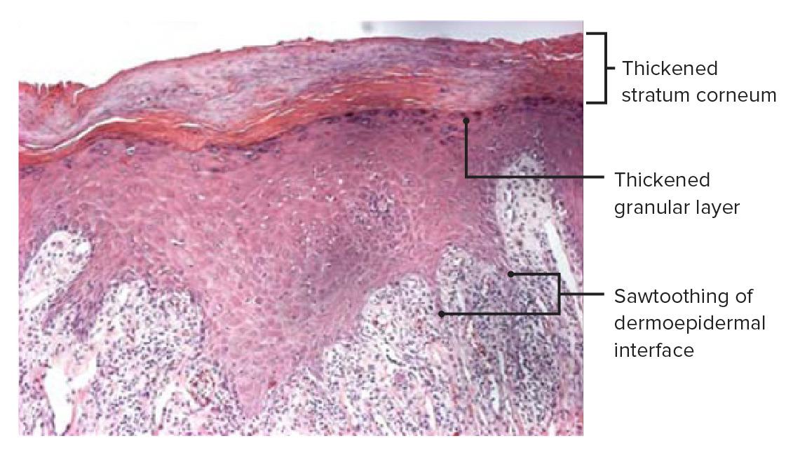 Histopathology of lichen planus