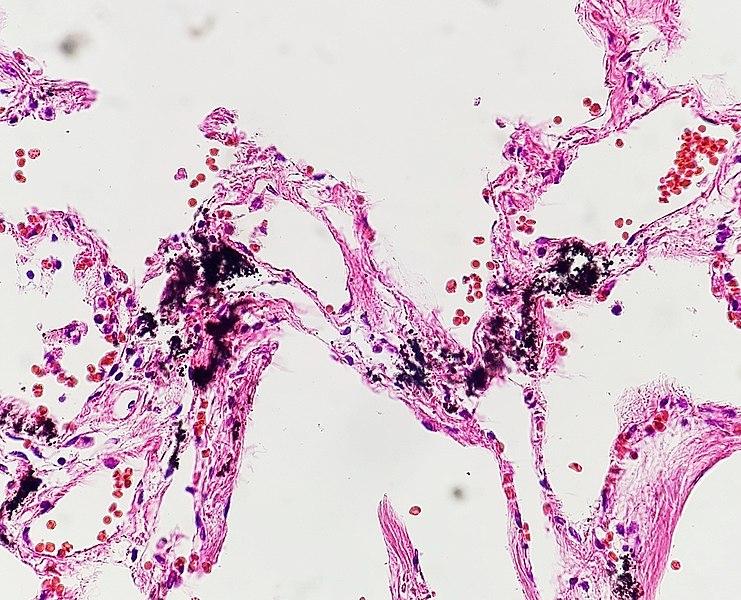 Histopathology of pulmonary anthracosis