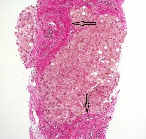 Histopathology of steatohepatitis with established cirrhosis