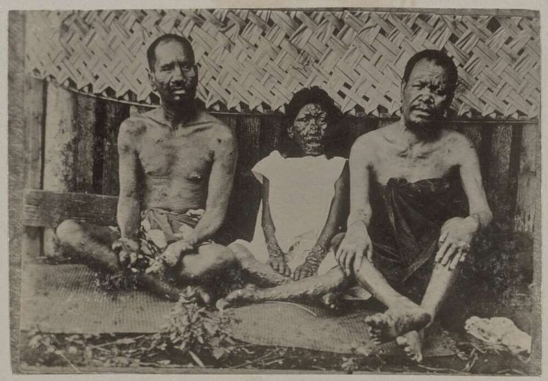 Historic image of leprosy patients