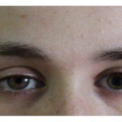 Horner syndrome