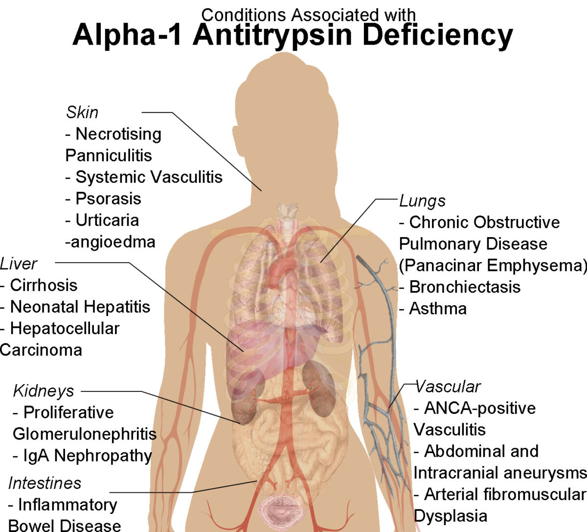 Human female shadow diagram with conditions associated with Alpha-1 Antitrypsin Deficiency Alpha-1 antitrypsin deficiency