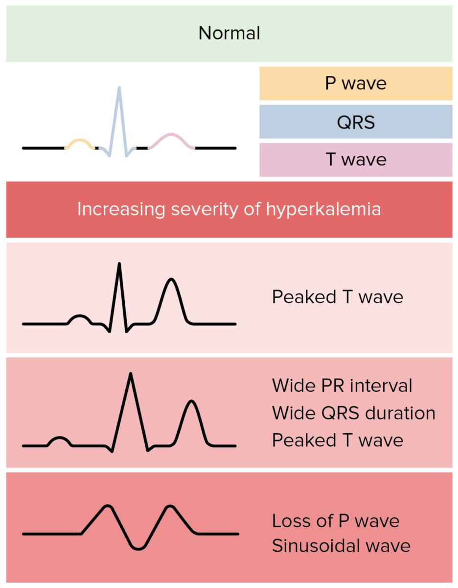 Hyperkalemia EKG