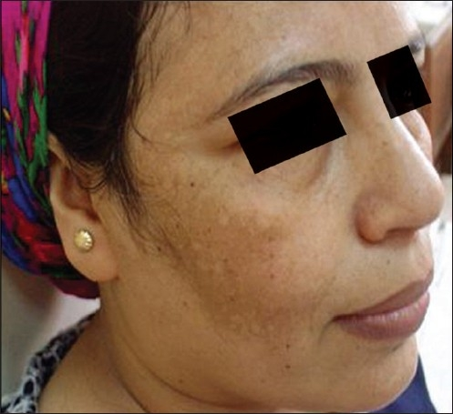 Hyperpigmentation melasma right