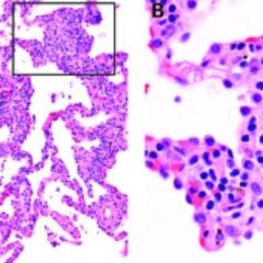 Hypersensitivity pneumonitis biopsy