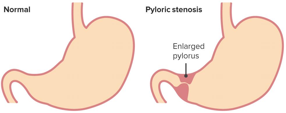 Hypertrophic pyloric stenosis