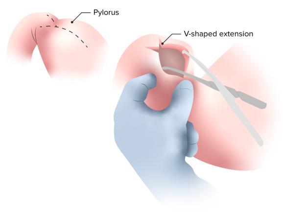 Hypertrophic pyloric stenosis surgery