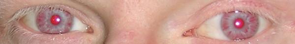 Hypopigmented eyes Chediak-Higashi syndrome