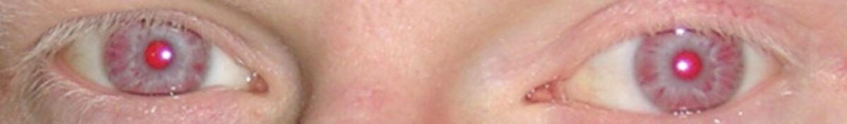 Hypopigmented eyes and eyelashes