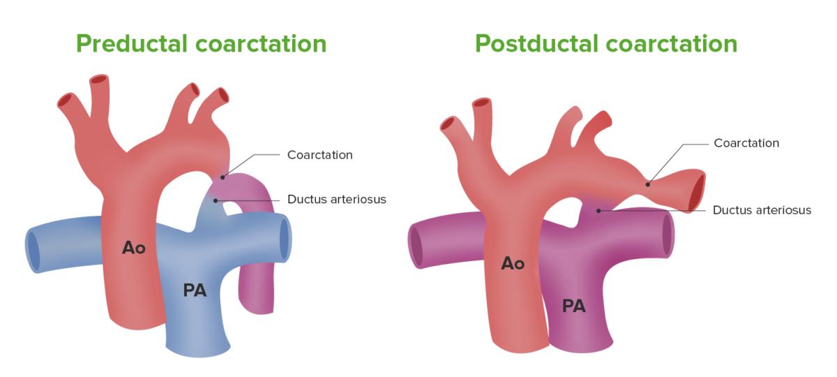 Illustration Coarctation of aorta