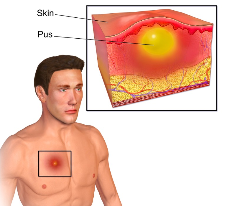 Illustration of a soft tissue abscess