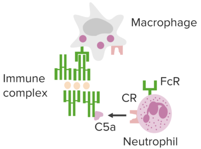 Immune complex mediated pathways underlying type III hypersensitivity.