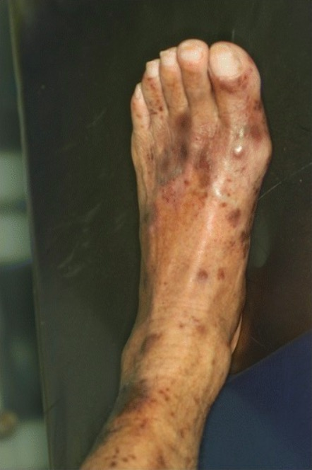 Immune thrombocytopenic purpura - purple spots on legs