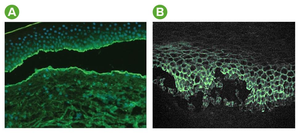 Immunofluorescence bullous pemphigoid & pemphigus vulgaris