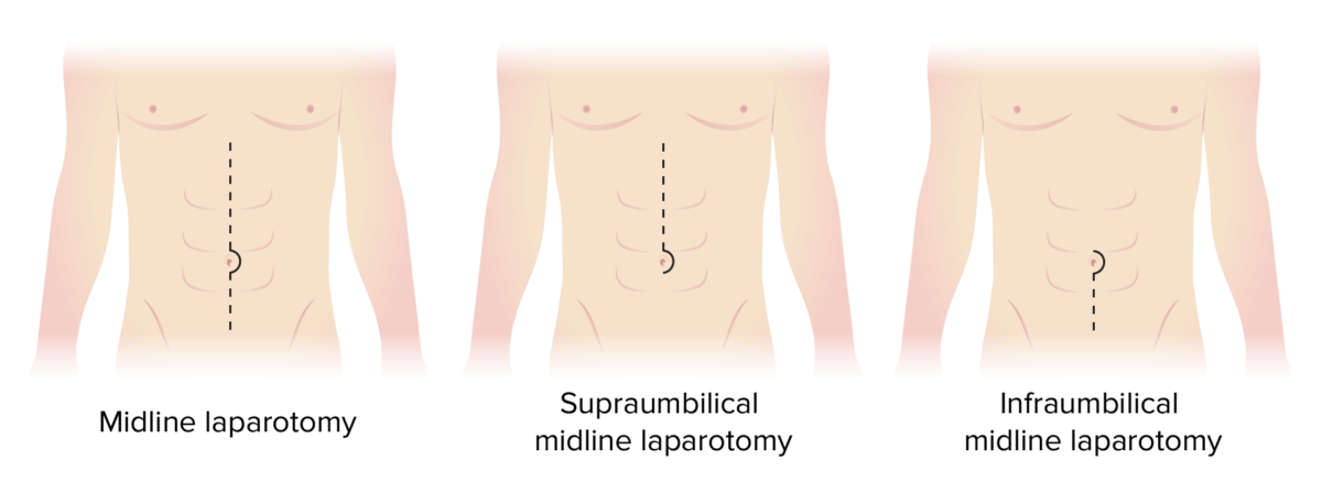 Incision sites for types of midline laparotomies