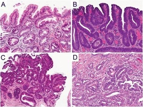 Increasing diagnostic accuracy to grade dysplasia in Barrett's esophagus