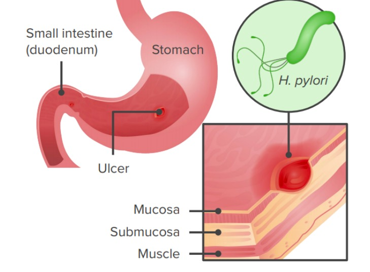 Infection with helicobacter pylori