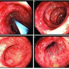 Infectious colitis colonoscopy